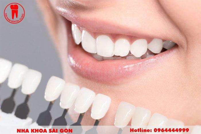 các loại răng sứ tại nha trang
