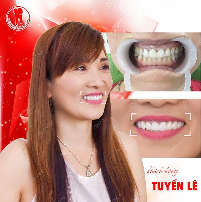 khách hàng làm răng sứ tuyến lê