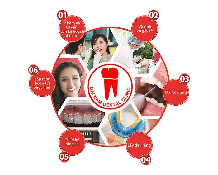 quy trình làm răng sứ tại nha trang