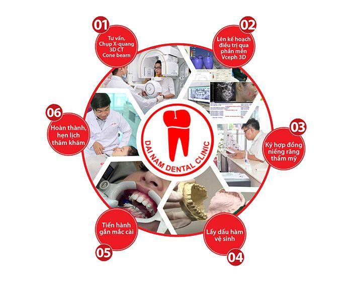 quy trình niềng răng tại nha trang