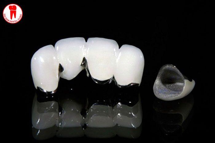 răng sứ kim loại tại nha trang