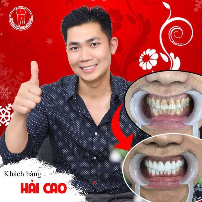 khách hàng làm răng sứ tại nha khoa sài gòn nha trang
