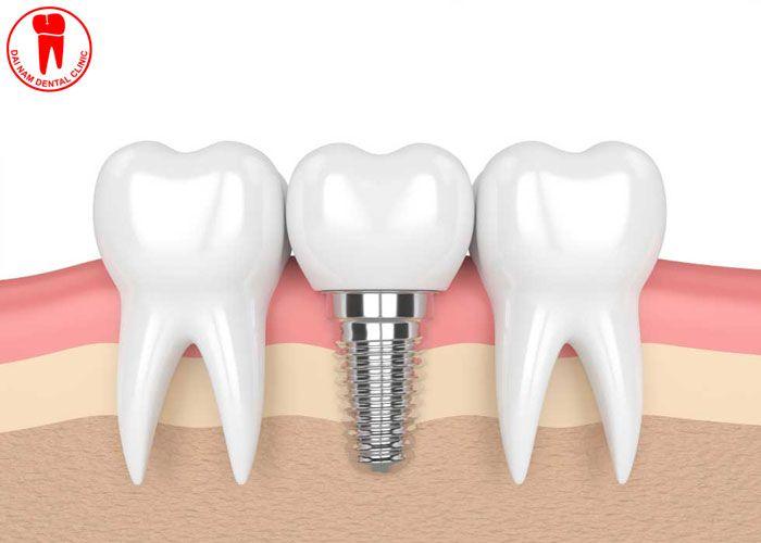 cấy ghép implant tốt nhất tại nha trang