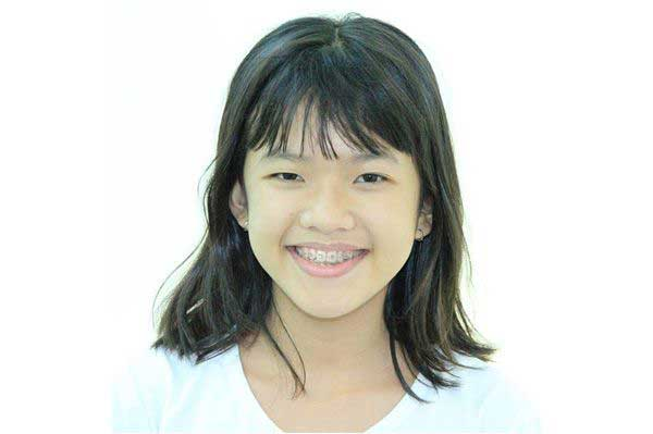 Bé Vỏ Thị Mỹ Sang - Sinh sống tại Thành phố Nha Trang