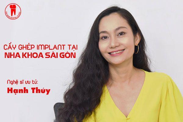 hanh thuy lam rang implant