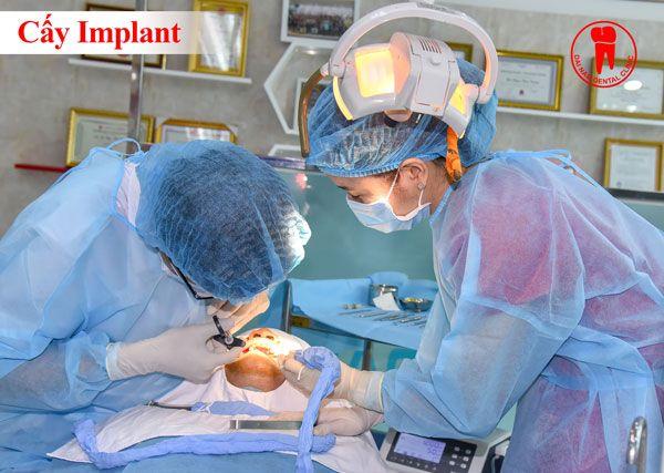làm răng implant tại đại nam sài gòn ở nha trang