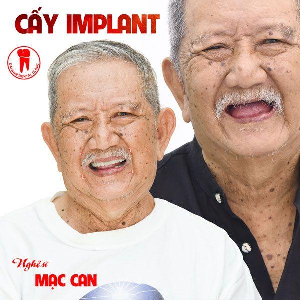 nghệ sĩ mạc can làm răng implant tại đại nam sài gòn