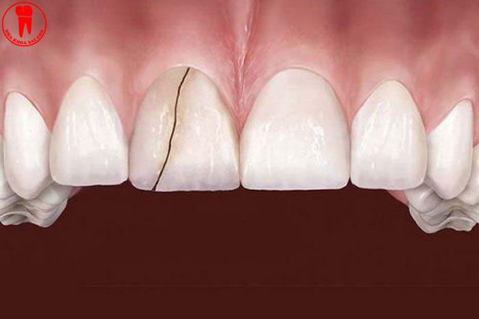 Răng bị vỡ, nứt do bọc răng sứ sai cách