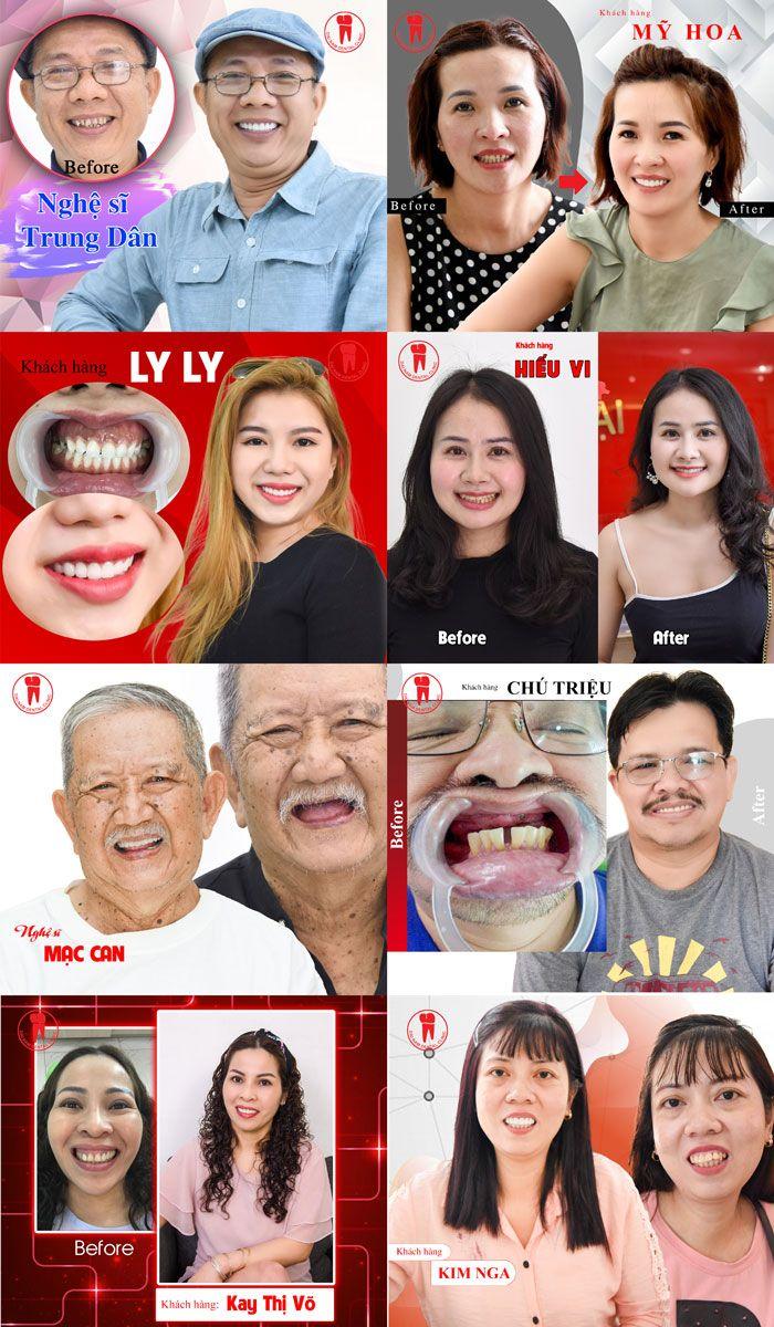 Nghệ sĩ và khách hàng làm răng tại Nha khoa Đại Nam Sài Gòn