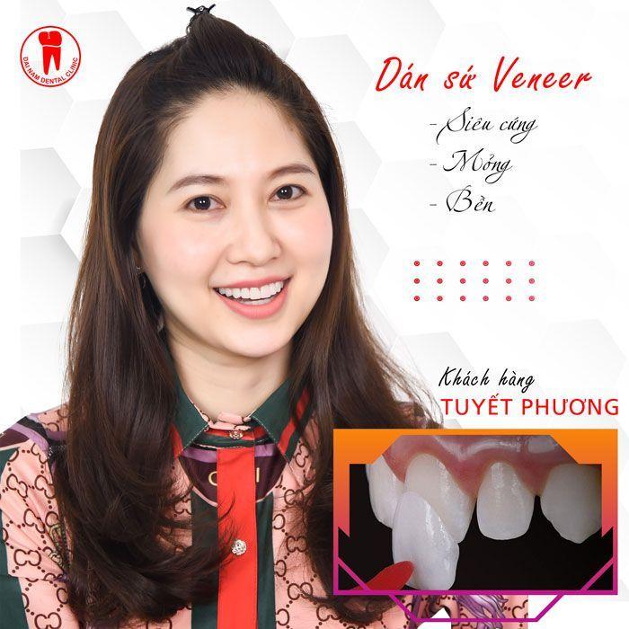 bọc răng sứ veneer siêu mỏng